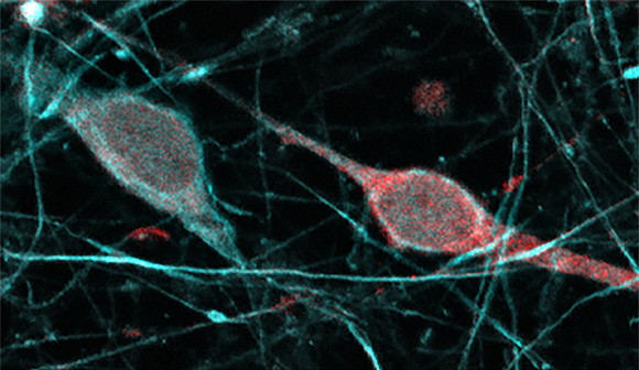 Neurons expressing dopamine-producing enzymes are found in human neocortex.