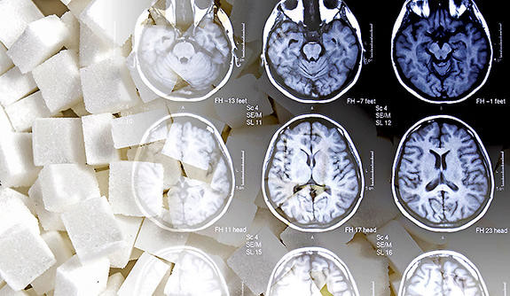 A collage combining a photo of sugar cubes with medical brain scans