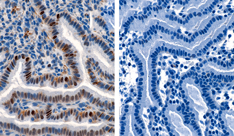 Cyclin E staining of the endometrium from a patient with recurrent pregnancy loss.