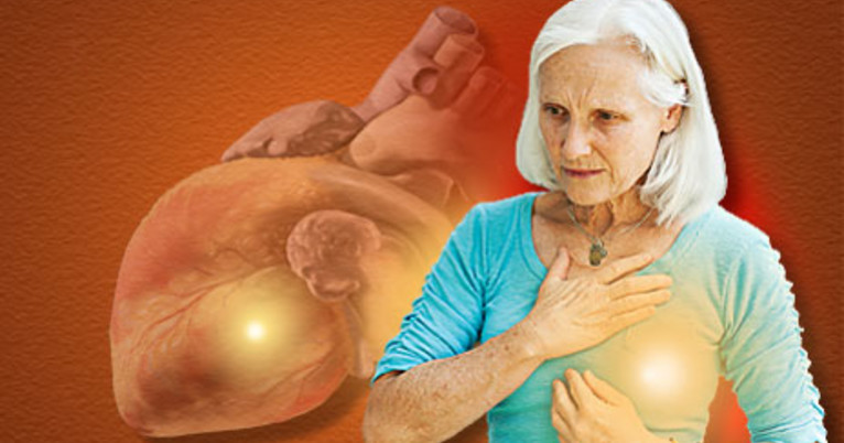 Heart Failure In Older Breast Cancer Patients Linked To