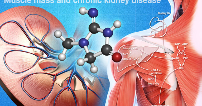 muscle disease