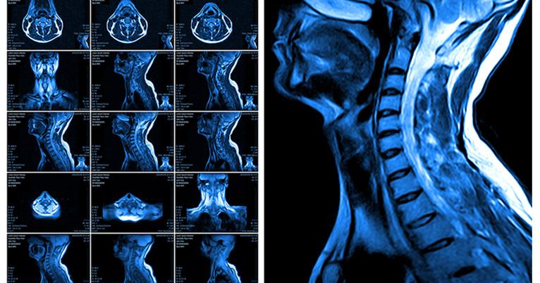 Do Patients With Neck Injuries Really Need That Mri After
