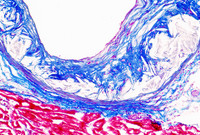 Atherosclerotic plaque in the aorta of a mouse model that is attenuated after deletion of miR-33 in macrophage cells.