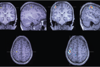 A series of brain scans highlighting regions of the brain associated with epilepsy.