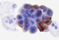 Cluster of cells